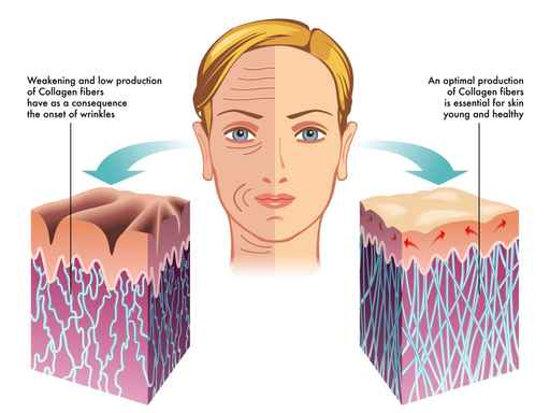 Collagen chống nhăn da